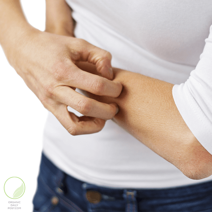Natural Remedies for Getting Rid of Chiggers