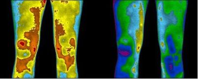 Earthing Thermal Image