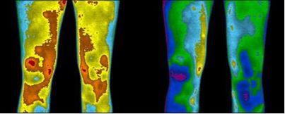 Earthing Thermal Image