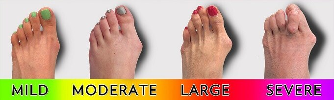 Bunions severity