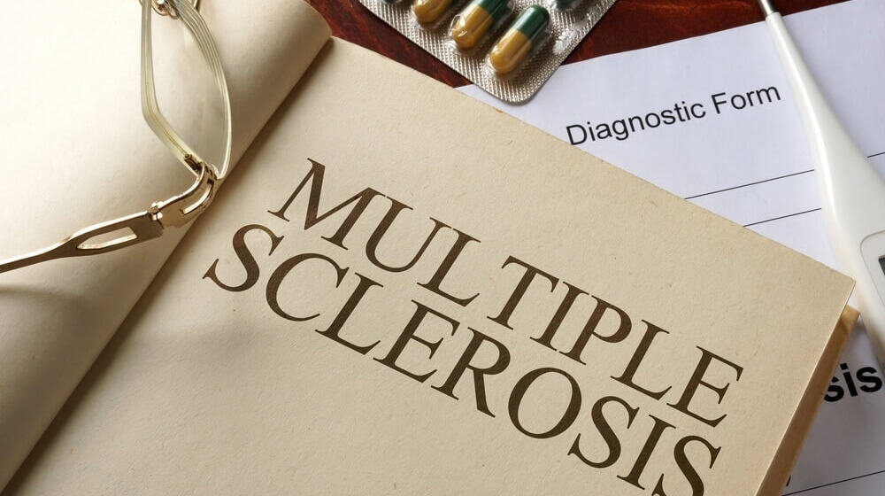 Finding Natural Treatment Options for Multiple Sclerosis