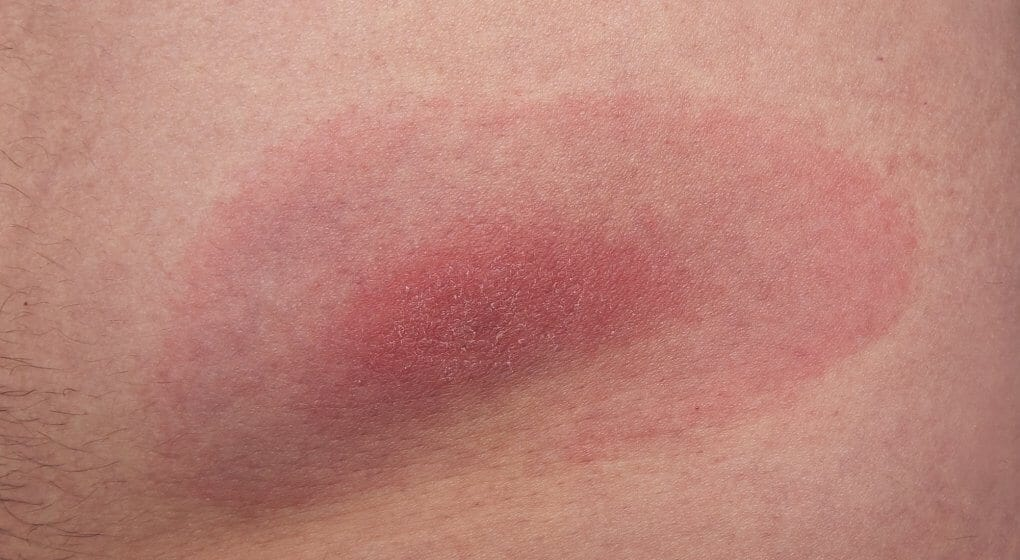 Lyme Disease- Want You Need to Know
