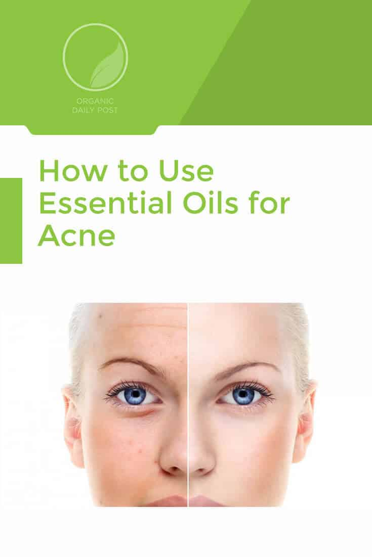 Fight acne with essential oils, NOT harsh chemicals. This quick how-to guide shows you the exact method.