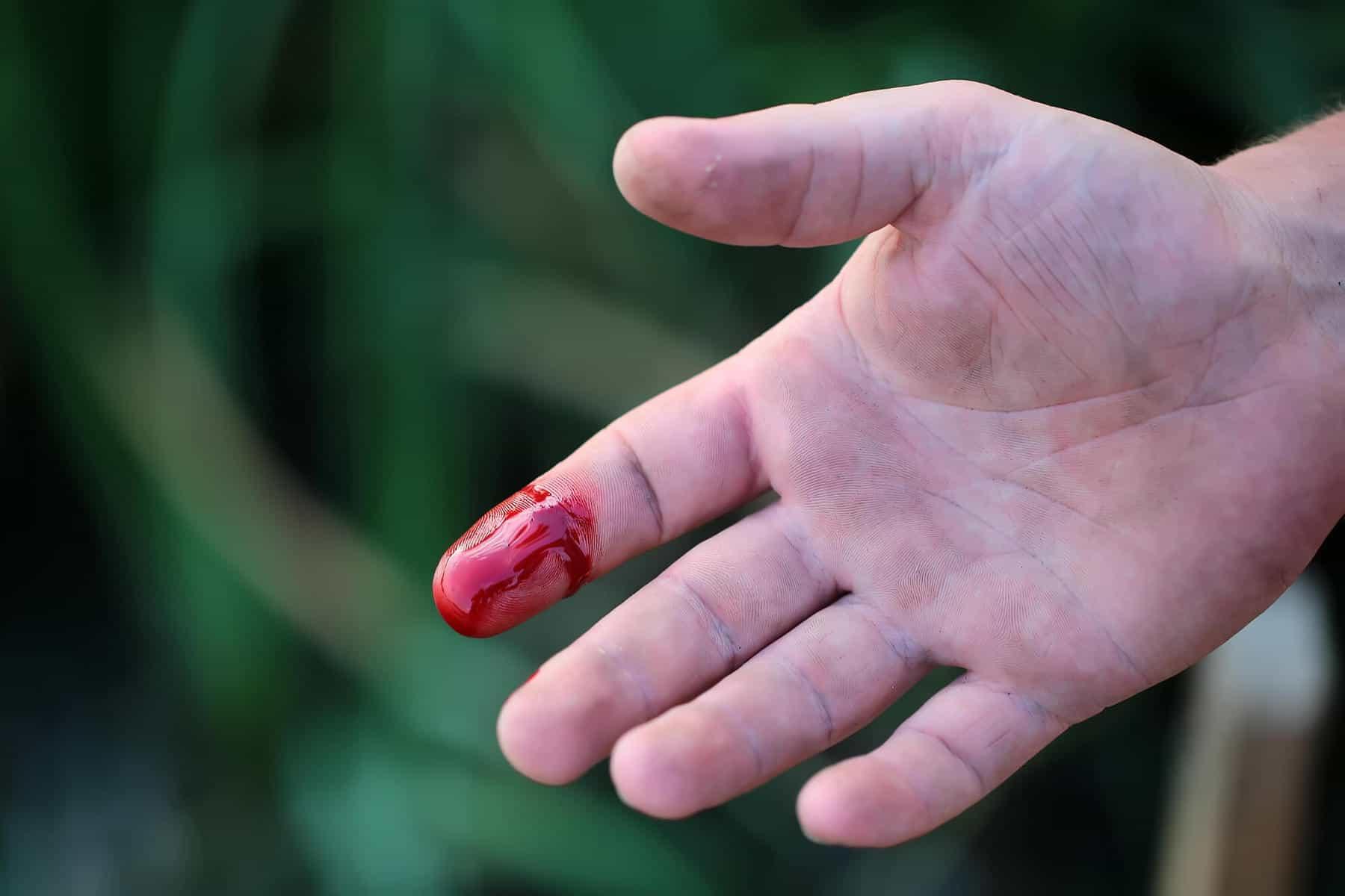Finger cut