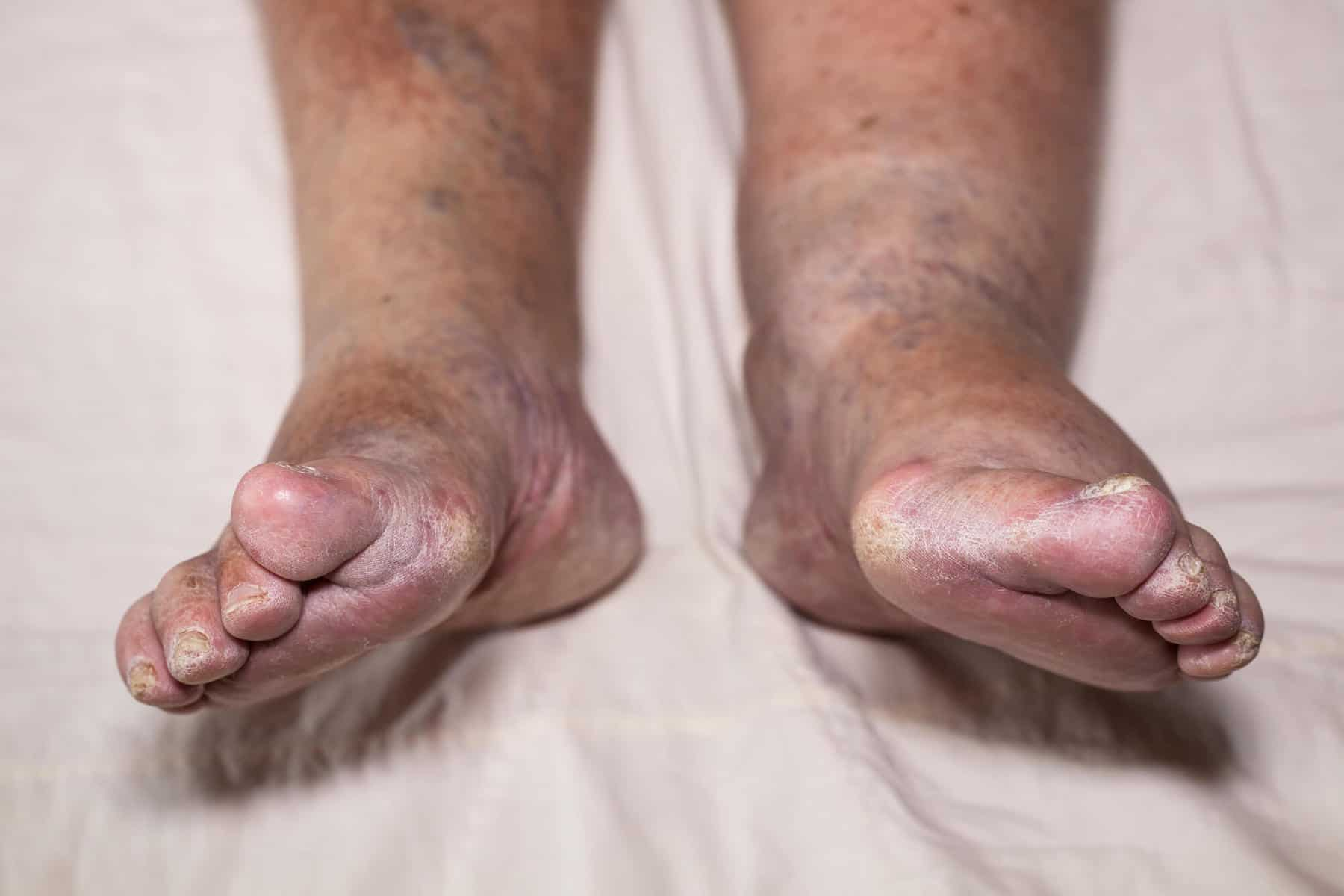 Swollen leg/ankle, Edema