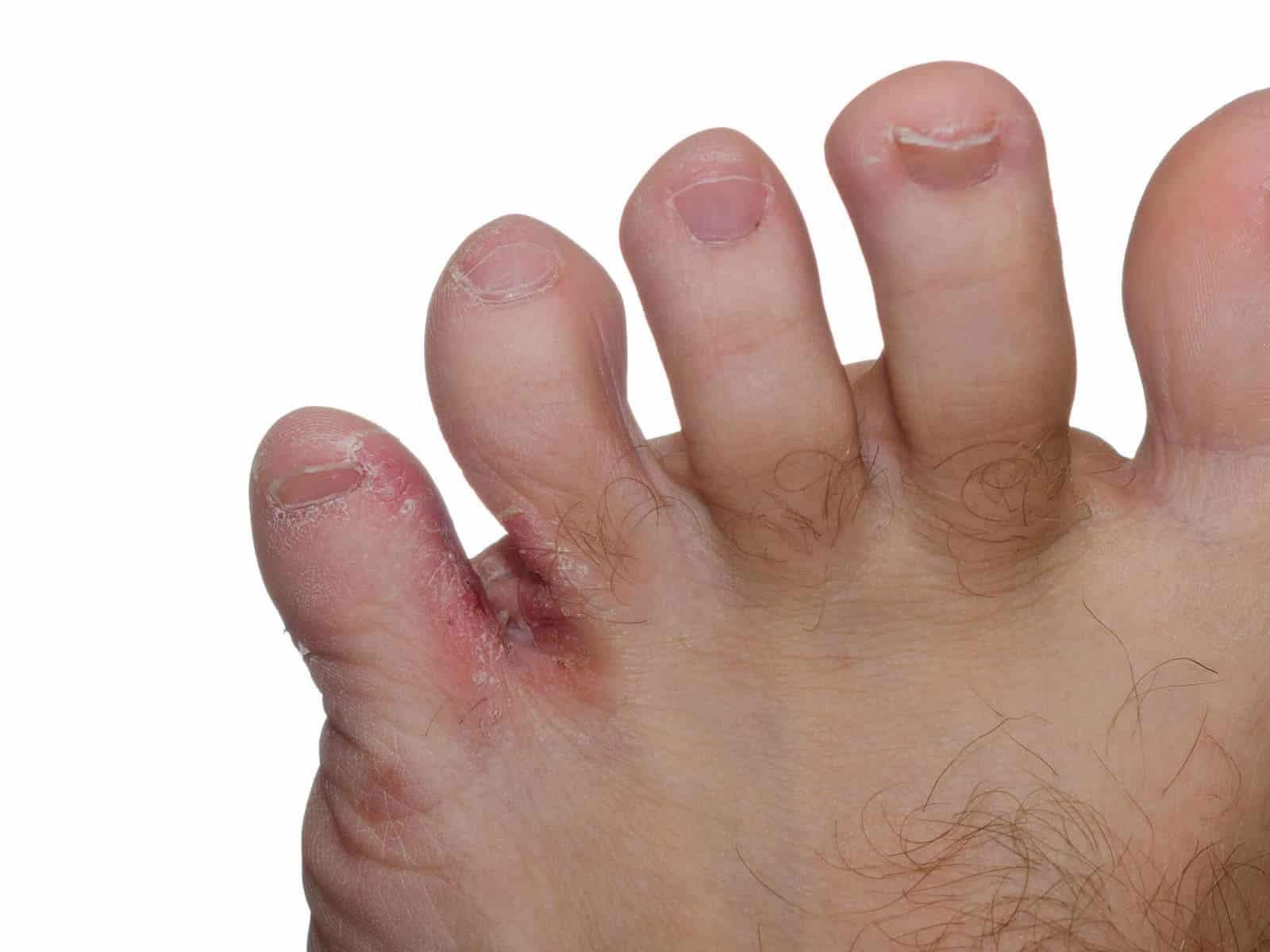 Foot fungus, athlete's foot